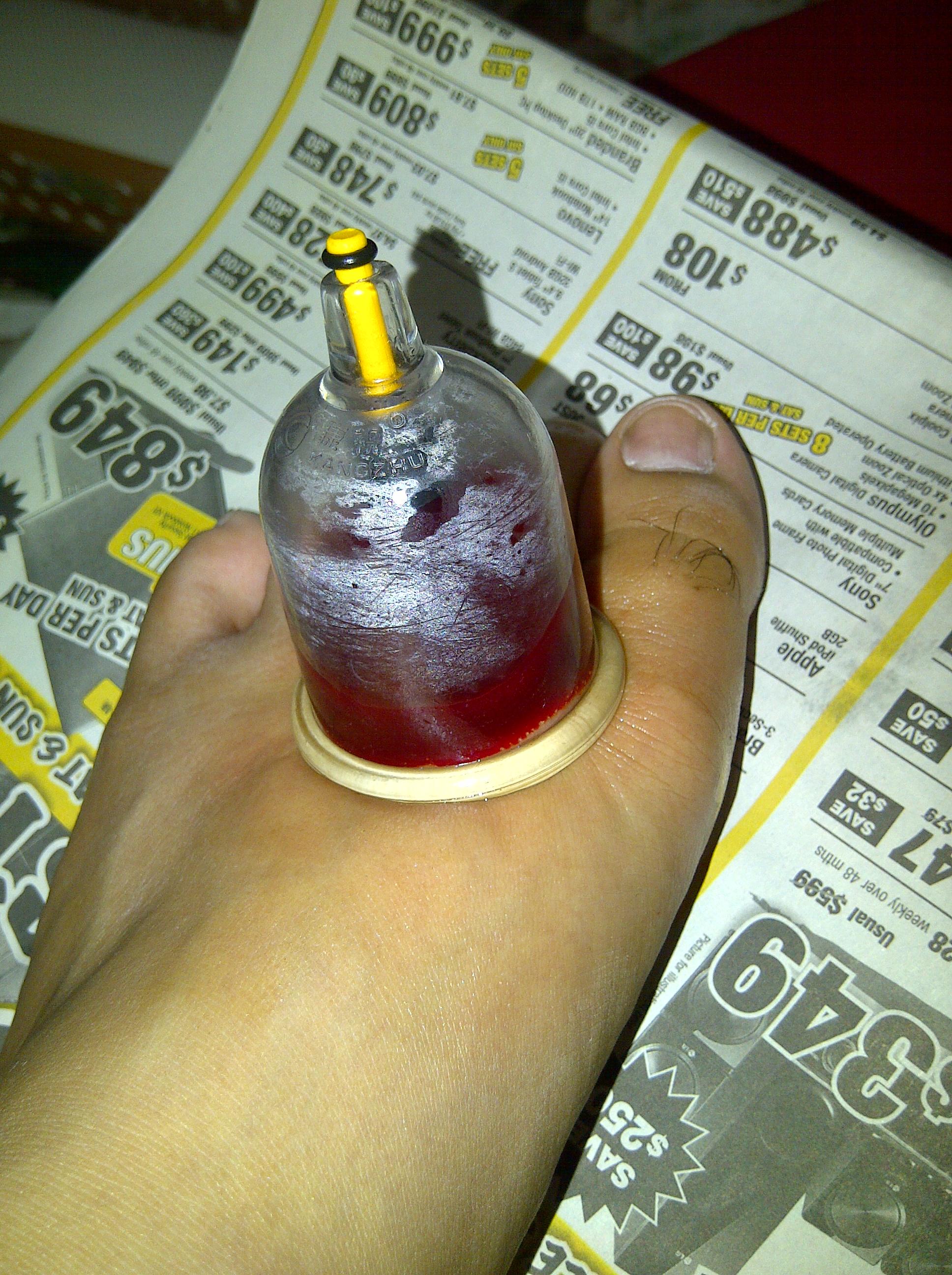 Hijama: what is it Bleed (Hijama): reviews, photos, contraindications 24